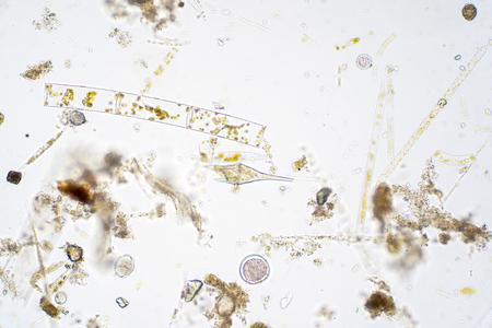 Plancton acuático marino bajo la vista del microscopio. Foto de archivo