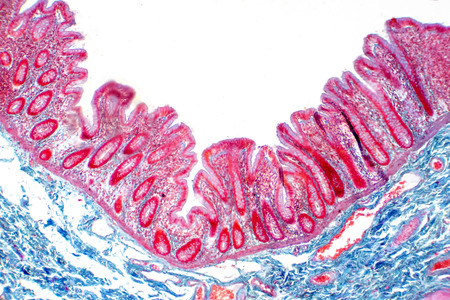 Human large intestine tissue under microscope view. Histological for human physiology. Banco de Imagens