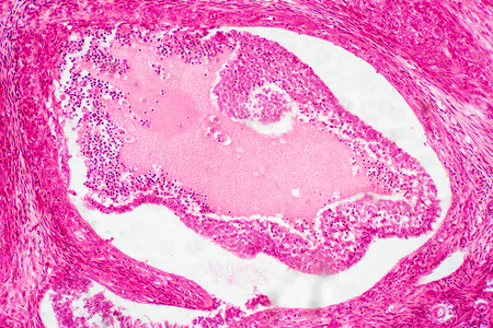 Light microscopic of human ovary showing primary and secondary follicles. Human physiology education.