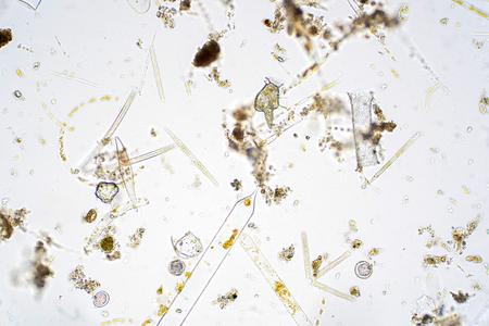 Marine aquatic plankton under the microscope view.