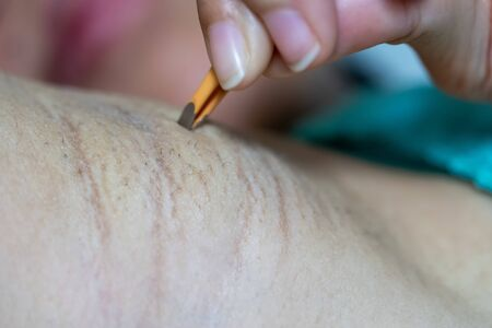 Close up hand of woman plucking armpit hair removal. Beauty care.