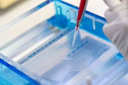 Molecular technique gel electrophoresis for DNA sample method decrypt the genetic code. biochemistry and clinical chemistry in laboratory. Stock Photo