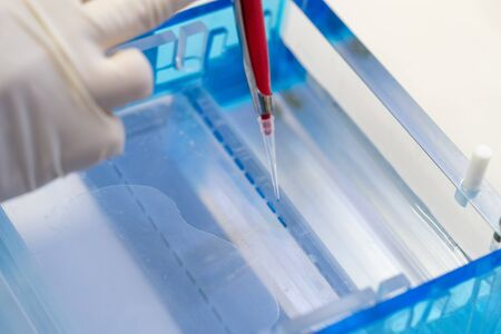 Molecular technique gel electrophoresis for DNA sample method decrypt the genetic code. biochemistry and clinical chemistry in laboratory.