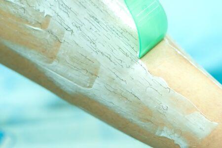 Frau epiliert Bein mit Enthaarungscreme und Spachtel. Scrubs Haarentfernungscreme.