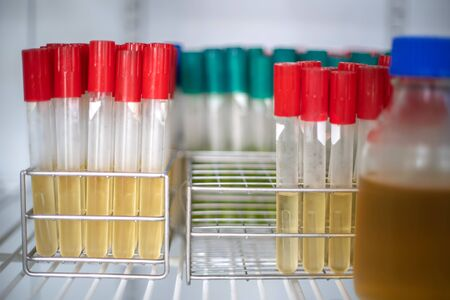 Tubo de ensayo para cultivo bacteriano en el laboratorio de incubadora fría.