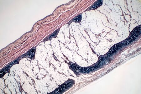 Human hyaline cartilage bone under microscope view for education pathology. Human tissue phisiology.