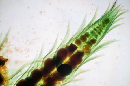 Moss gametophyte is the sexual phase in the life cycle of plants under microscope for biology education.