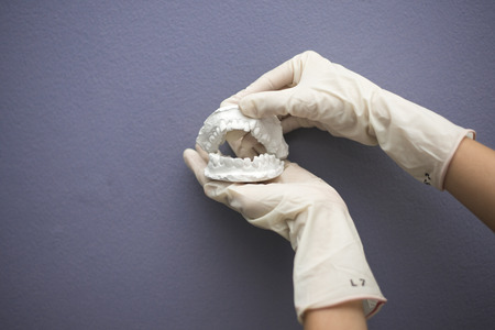 prothetic: Dentist hand with plaster model