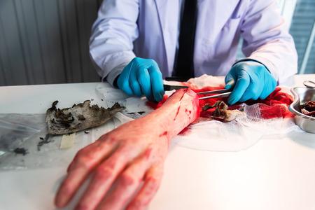 Autopsy Body surgeon during the survey,Dead person. Focus at the Hand Banco de Imagens