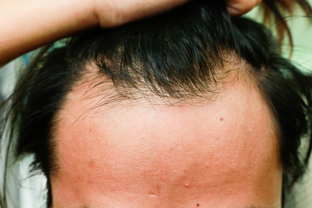 Asian man, Men serious hair loss problem for health care shampoo and beauty product concept