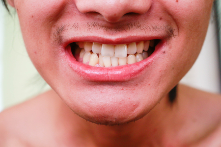 Laughing young man mouth with great teeth