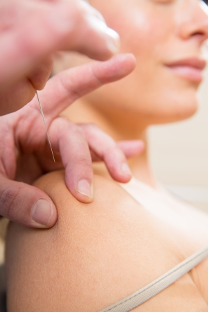 Doctor hands acupuncture needle pricking on woman patient closeup photo