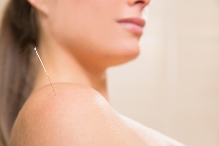 Acupuncture needle pricking on woman shoulder therapy closeup photo