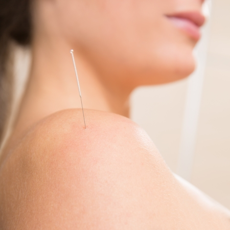 Acupuncture needle pricking on woman shoulder therapy closeup Stock Photo - 19636920