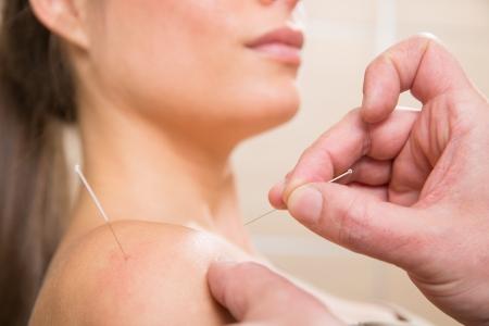 acupuntura china: M?dico manos acupuntura pinchazo de aguja en la joven del primer paciente