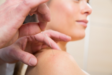 acupuncturist: Doctor hands acupuncture needle pricking on woman patient closeup Stock Photo