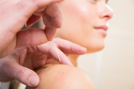 beauty treatment clinic: Doctor hands acupuncture needle pricking on woman patient closeup Stock Photo