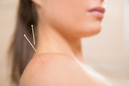 Acupuncture needle pricking on woman shoulder therapy closeup Stock Photo - 19636930