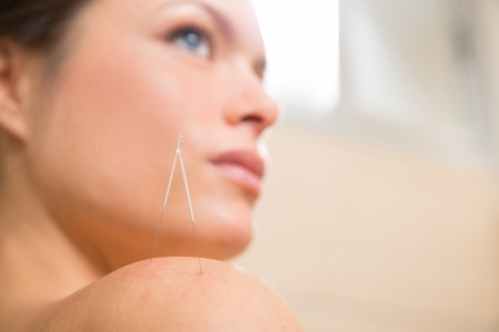 alternative therapies: Acupuncture needle pricking on woman shoulder therapy closeup