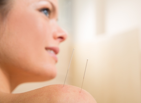 Acupuncture needle pricking on woman shoulder therapy closeup Stock Photo - 19636921