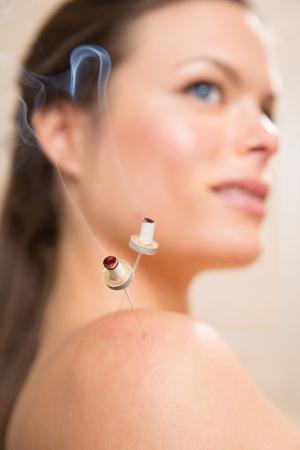 moxibustion: moxibustion acupunture needles heat on woman shoulder closeup