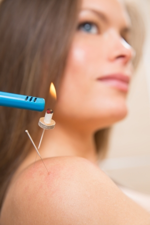 moxibustion: moxibustion acupunture needles heat on woman shoulder closeup