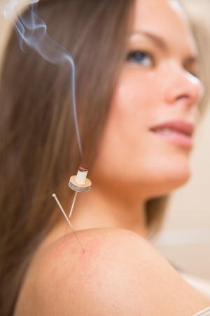 moxibustion acupunture needles heat on woman shoulder closeup photo