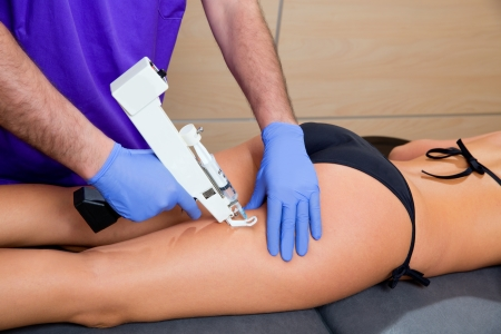 mesotherapy gun therapy for cellulite doctor with woman leg thigh Stock Photo - 19637006