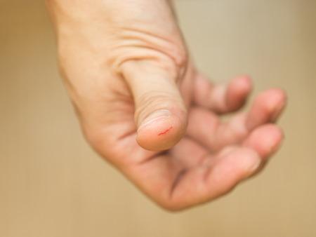 Thumb cut wound