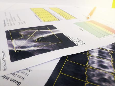 Immagine morbida e sfocata: risultato di densitometria ossea dell'anca e della colonna lombare. su sfondo luminoso Archivio Fotografico