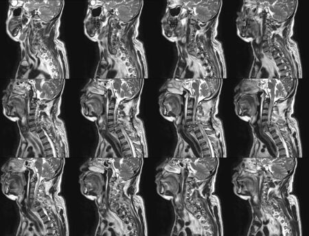 MRI OF CERVICAL SPINE HISTORY: A 57-year-old male, presented with history of vehicle accident Total anterior subluxation of C6 over C7 vertebral bodies, with disruption of anterior and posterior longitudinal ligaments causing spinal cord injury.