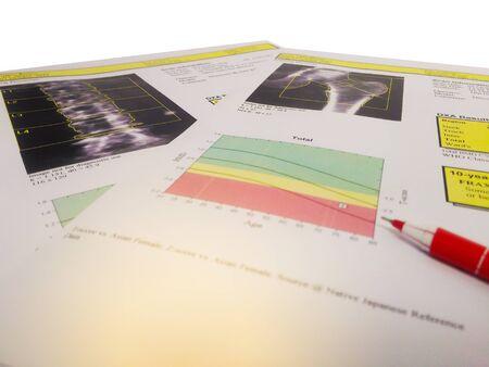 Hip and lumbar spine Bone density report.