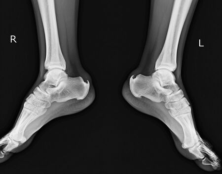 X-ray both  foot ap.showing Calcaneal spur both side. Stock Photo