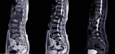 MRI KRĘGOSŁUPA LĘDŹWIOWEGO. 69-letnia kobieta z bólem krzyża od 3 miesięcy, aby wykluczyć HNP lub TB kręgosłupa.
