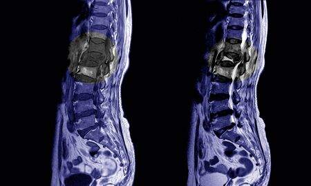MRI OF THE LUMBOSACRAL SPINE.A 69-year-old female with low back pain for 3 months, to rule out HNP or TB spine. Zdjęcie Seryjne - 132330299