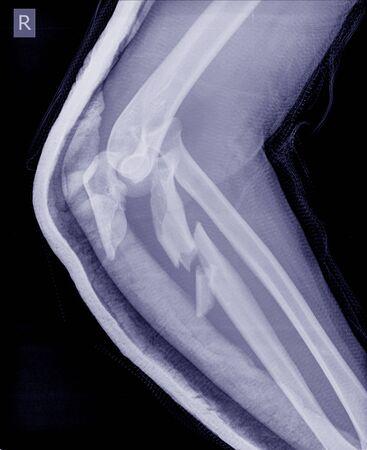 Röntgenaufnahme des rechten Ellenbogengelenks von der Seite, zeigt eine Olecranon-Fraktur, bei der sich die Knochenstücke verschoben haben (verschoben)