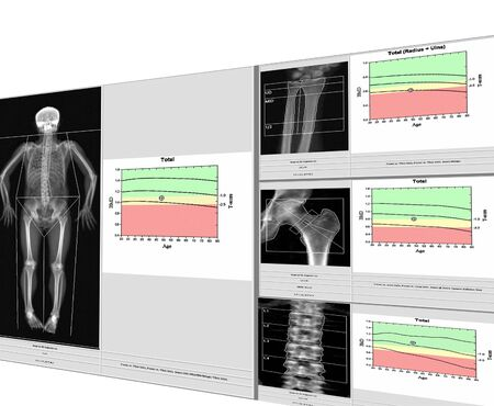 special examination medical image bone density.Whole body and wrist,hip,spine,Image too blurry when views full solution,Medical concept. Фото со стока