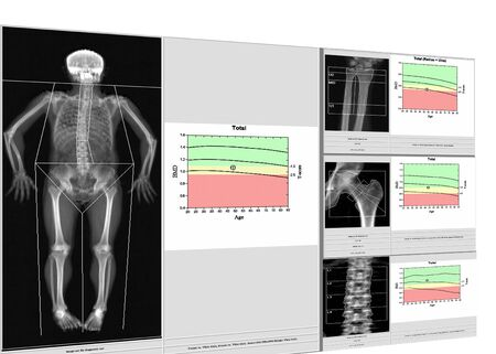 special examination medical image bone density.Whole body and wrist,hip,spine,Image too blurry when views full solution,Medical concept.