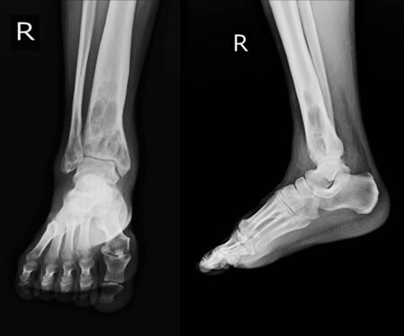 X-ray Rt.Ankle finding intramedullary osterolytic lesion of right distal tibia.  No periosteal reaction is noted. Benign bone tumor is tobe excluded. Normal  right ankle joint.