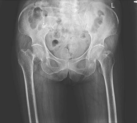 x-ray both hip fracture right neck femoral. Stok Fotoğraf