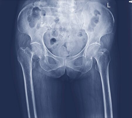 x-ray both hip fracture right neck femoral.