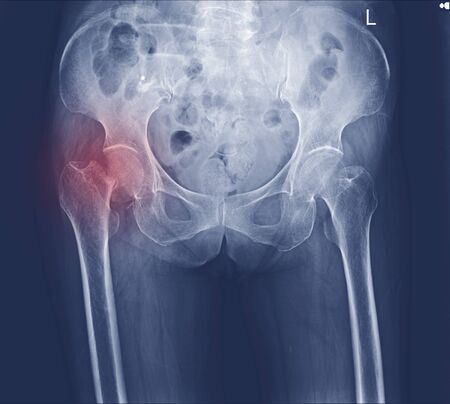 x-ray both hip fracture right neck femoral. Zdjęcie Seryjne