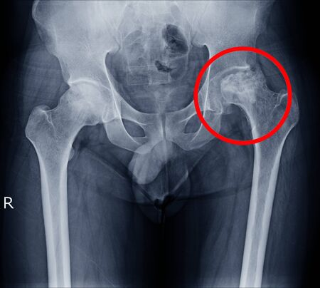 Defined rarefaction of left femoral head and neck,and left periacetabular region and osteolytic lesions are suspected.Soft tissue density at left side of pelvic cavity and soft tissue mass is tube.