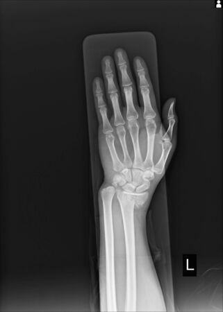 X-ray Left wrist joint Fracture with displacement distal end left radius.Soft tissue swelling.