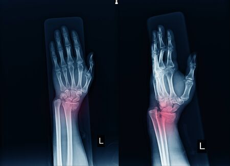 X-ray Left wrist joint AP,LATERAL  Fracture with displacement distal end left radius.Soft tissue swelling.