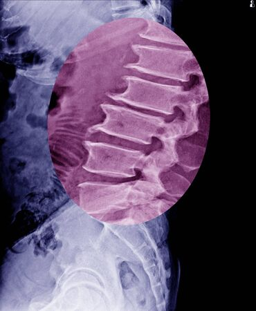 Lumbar spine x-ray show spur of vertebral body and mild scoliosis of bone.Medical image.