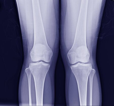 standing both knee views x-ray show normal joint. Zdjęcie Seryjne