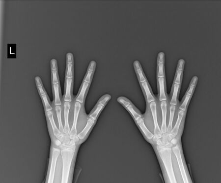 film x-ray both hand AP : show normal humans hands on black background (isolated)