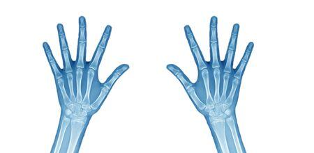 Blauton Beide Hand xray auf weißem Hintergrund. Standard-Bild