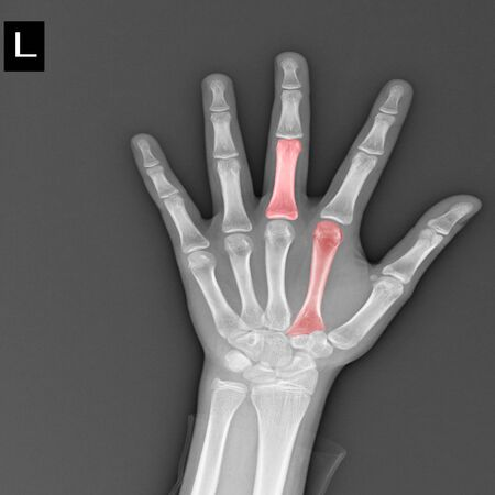 Close up Hand showing bone x-ray, Medical concept, Image too bright and blurry.